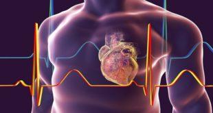 أبرز علامات وأعراض النوبة القلبية الصامتة!