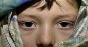 الكشف عن علامة تشير إلى أمراض خطيرة